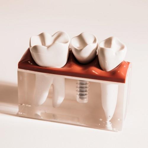 Zahnersatz: Was Patienten dazu wissen müssen