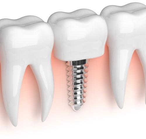 Keine Angst vor Zahnimplantaten: Sicherer Halt für dritte Zähne