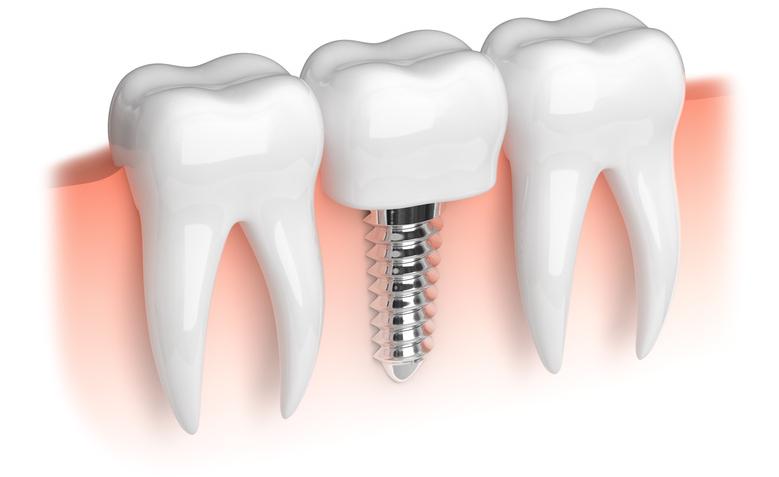 Erfahrung implantat zahn Was kosten