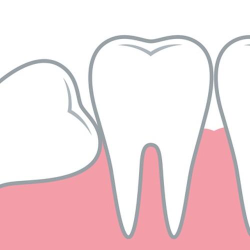 Zahnärztliche Chirurgie: Wir kümmern uns um Operationen im Mundraum