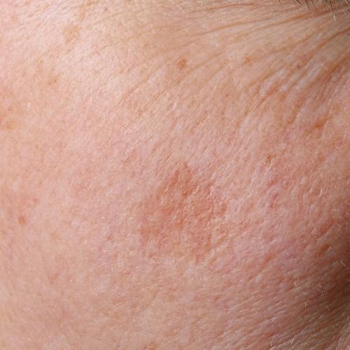 Hautveränderungen? Gehen Sie kein Risiko ein
